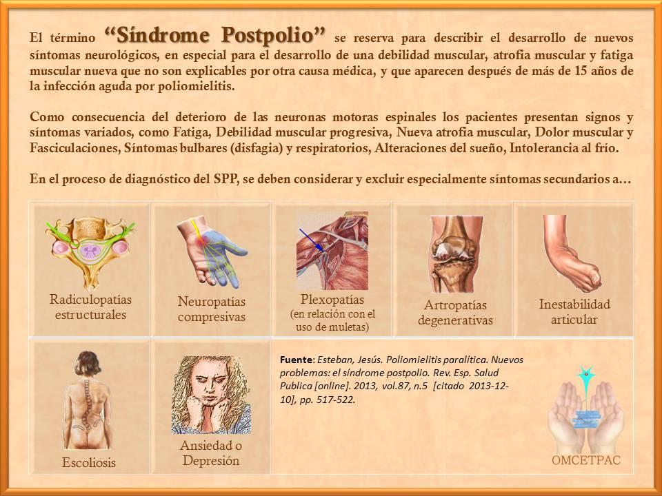 http://www.postpoliomexico.org/ElTerminoSPPSeReserva.jpg